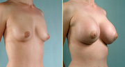 1.Enlarge or reduce your breasts...+27784057265